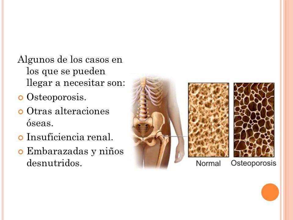 Algunos de los casos en los que se pueden llegar a necesitar son: Osteoporosis.