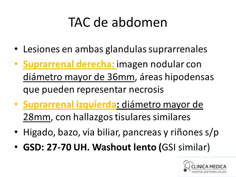 TAC de abdomen Lesiones en ambas glandulas suprarrenales Suprarrenal derecha: imagen nodular con diámetro mayor de 36mm, áreas hipodensas que pueden r