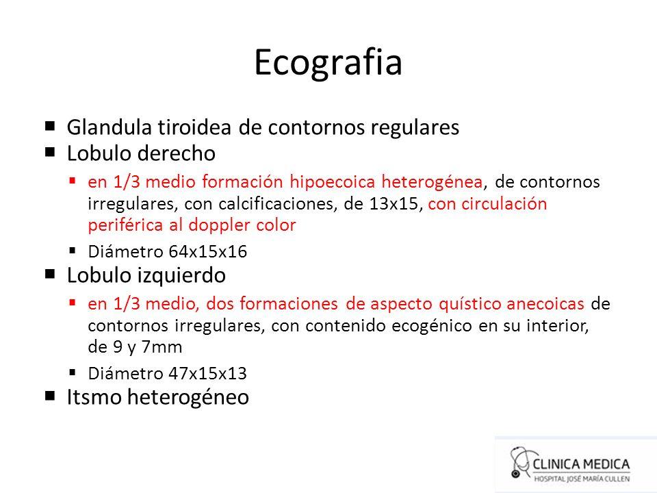 Ecografia Glandula tiroidea de contornos regulares Lobulo derecho en 1/3 medio formación hipoecoica heterogénea, de contornos irregulares, con calcifi