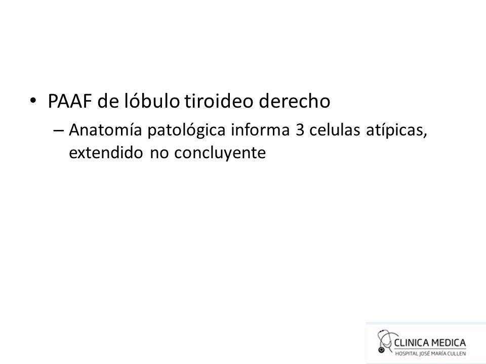 PAAF de lóbulo tiroideo derecho – Anatomía patológica informa 3 celulas atípicas, extendido no concluyente