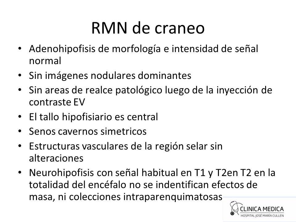 RMN de craneo Adenohipofisis de morfología e intensidad de señal normal Sin imágenes nodulares dominantes Sin areas de realce patológico luego de la i