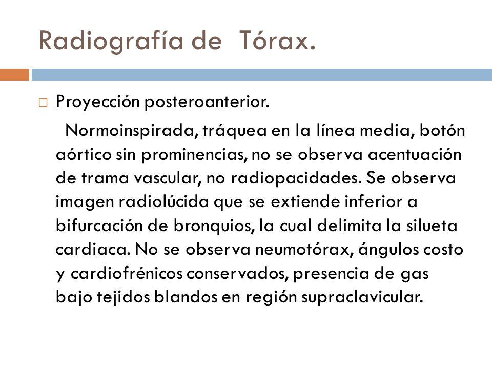 Radiografía de Tórax. Proyección posteroanterior. Normoinspirada, tráquea en la línea media, botón aórtico sin prominencias, no se observa acentuación