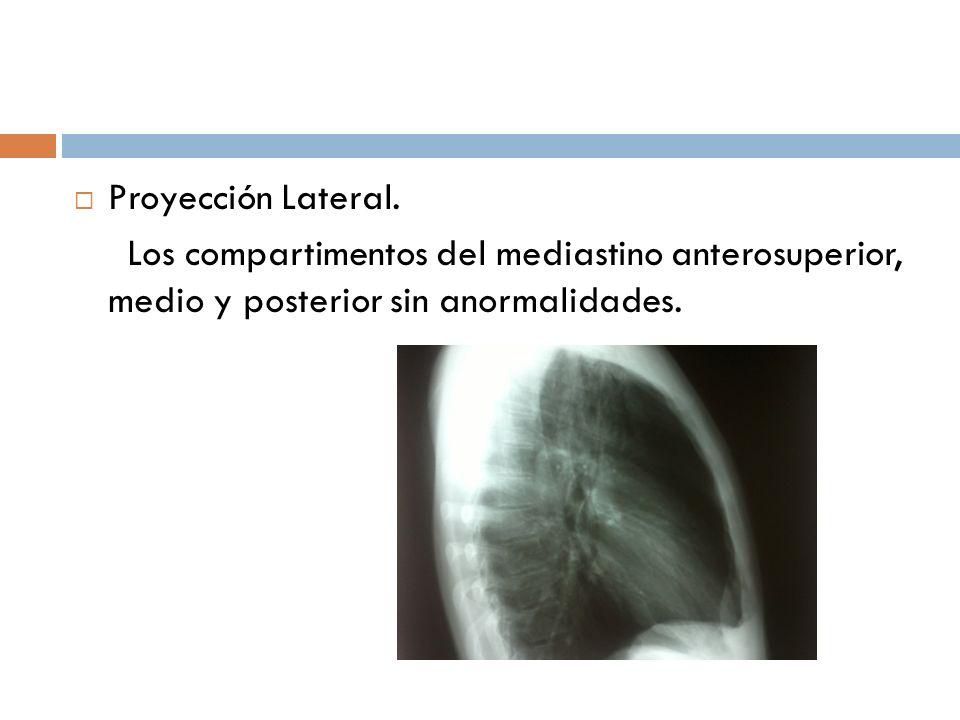 Proyección Lateral. Los compartimentos del mediastino anterosuperior, medio y posterior sin anormalidades.