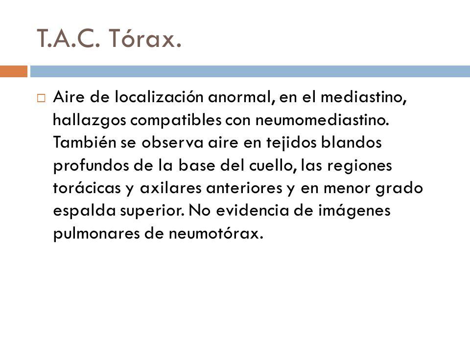 T.A.C. Tórax. Aire de localización anormal, en el mediastino, hallazgos compatibles con neumomediastino. También se observa aire en tejidos blandos pr