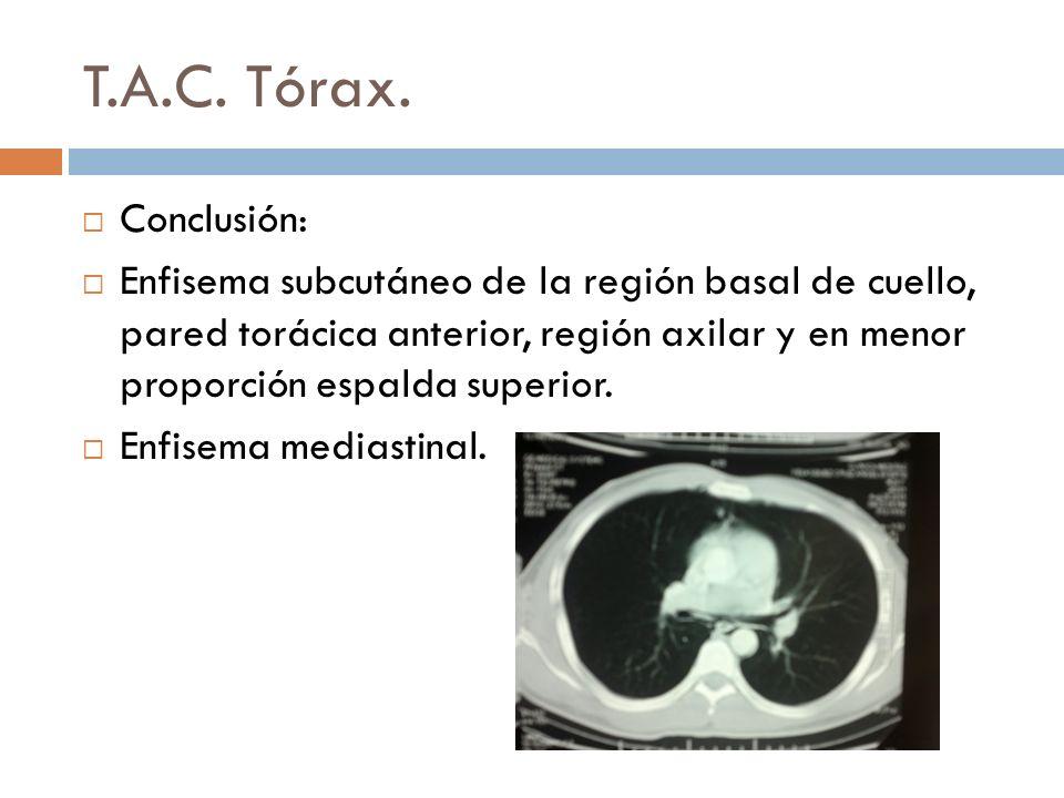 T.A.C. Tórax. Conclusión: Enfisema subcutáneo de la región basal de cuello, pared torácica anterior, región axilar y en menor proporción espalda super