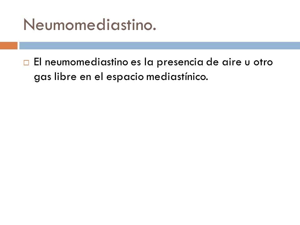 Neumomediastino. El neumomediastino es la presencia de aire u otro gas libre en el espacio mediastínico.
