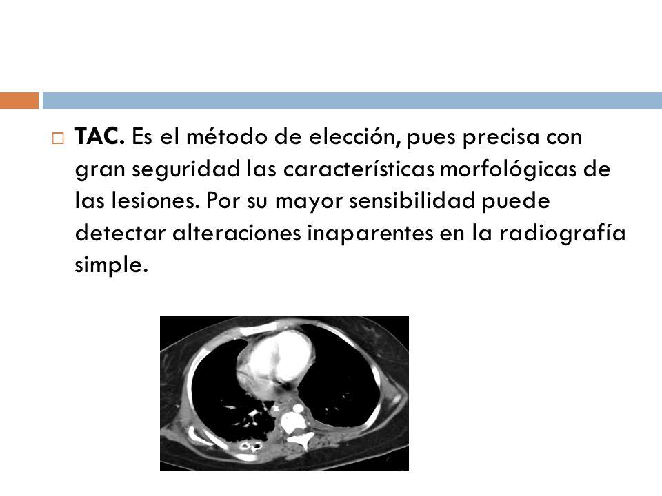 TAC. Es el método de elección, pues precisa con gran seguridad las características morfológicas de las lesiones. Por su mayor sensibilidad puede detec