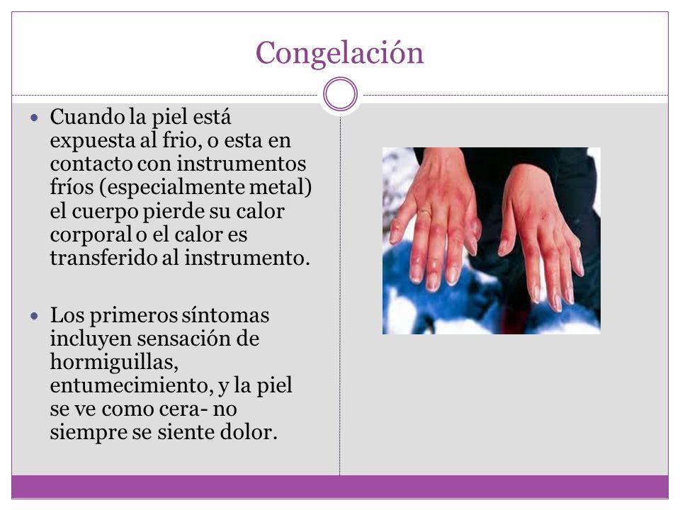 Congelación Cuando la piel está expuesta al frio, o esta en contacto con instrumentos fríos (especialmente metal) el cuerpo pierde su calor corporal o el calor es transferido al instrumento.