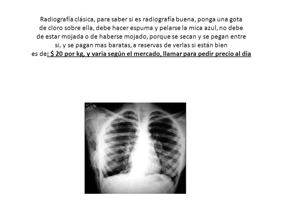 Radiografía clásica, para saber si es radiografía buena, ponga una gota de cloro sobre ella, debe hacer espuma y pelarse la mica azul, no debe de esta