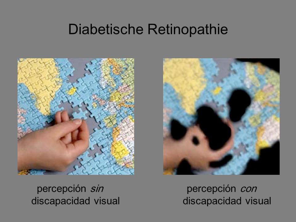 Diabetische Retinopathie percepción sin discapacidad visual percepción con discapacidad visual