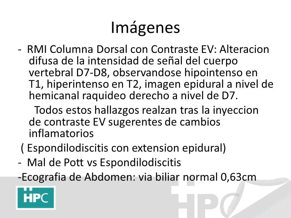 Imágenes - RMI Columna Dorsal con Contraste EV: Alteracion difusa de la intensidad de señal del cuerpo vertebral D7-D8, observandose hipointenso en T1