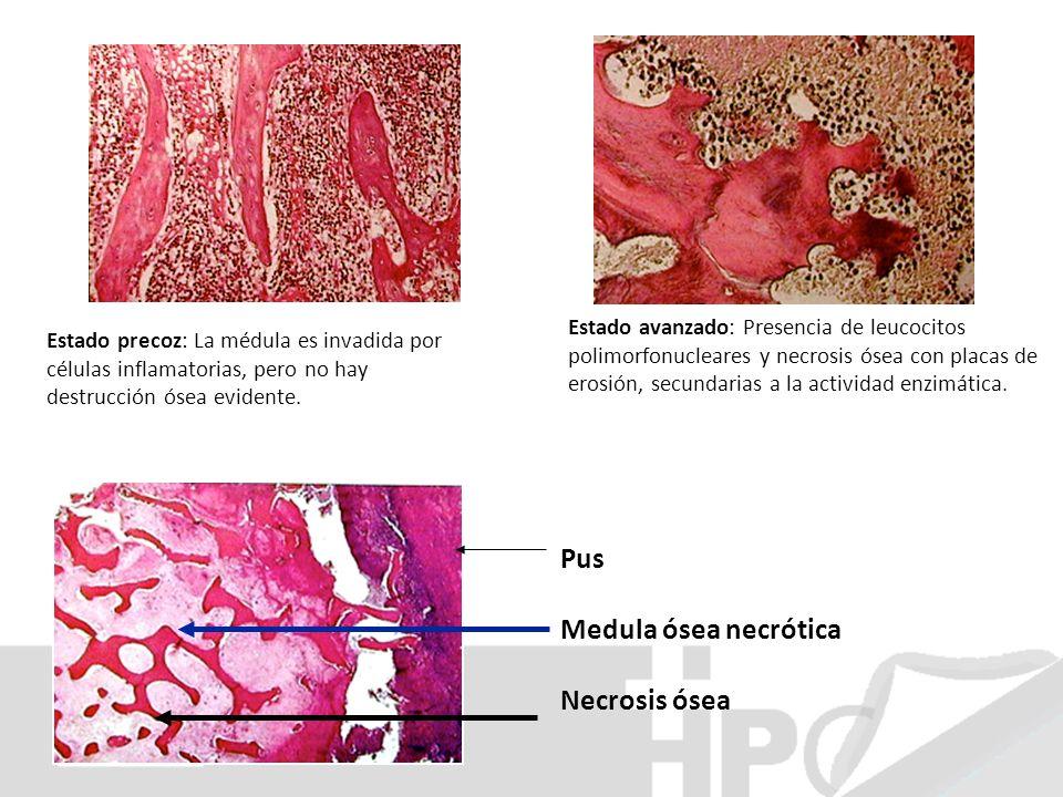 Estado precoz: La médula es invadida por células inflamatorias, pero no hay destrucción ósea evidente. Pus Medula ósea necrótica Necrosis ósea Estado