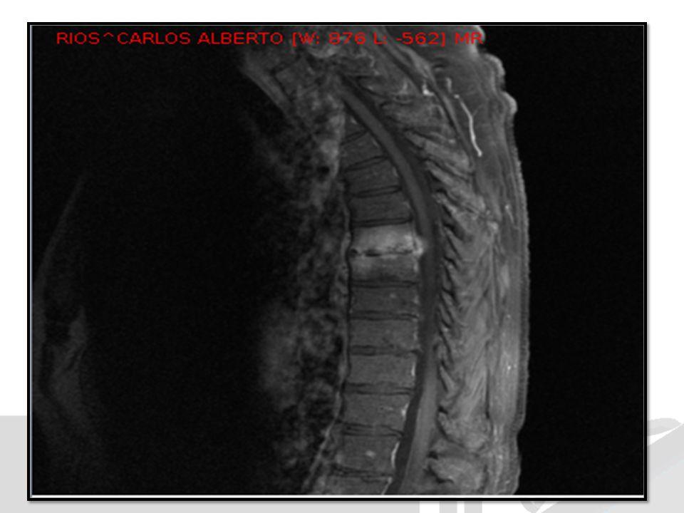 DIAGNOSTICO DIFERENCIAL Infeccioso Espondilodiscitis Tuberculosis vertebral Espondilitis Brucelar No infeccioso Metastasis Fracturas Hernias de discos Enfermedades degenerativas vertebral