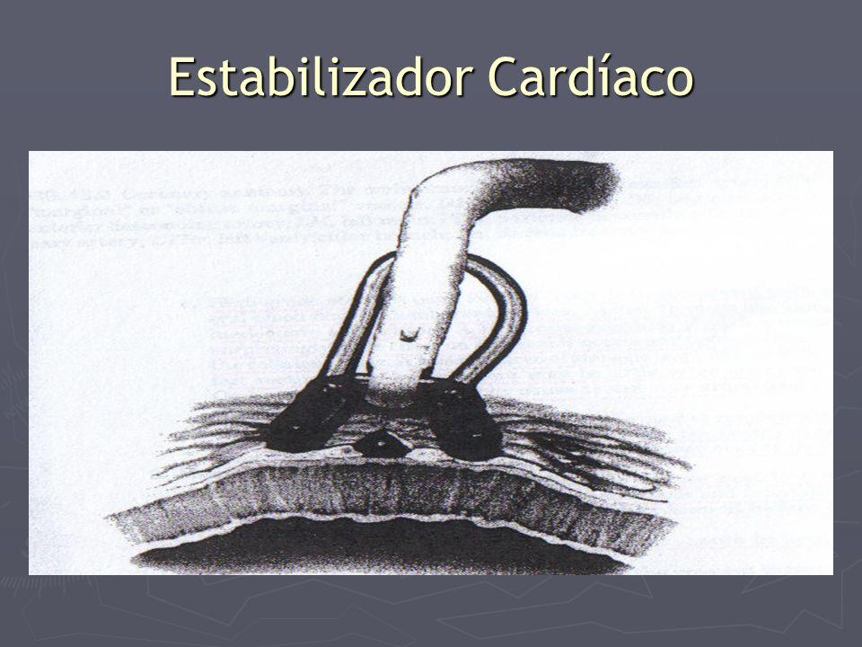 Estabilizador Cardíaco
