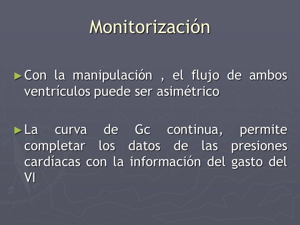 Monitorización Con la manipulación, el flujo de ambos ventrículos puede ser asimétrico Con la manipulación, el flujo de ambos ventrículos puede ser as