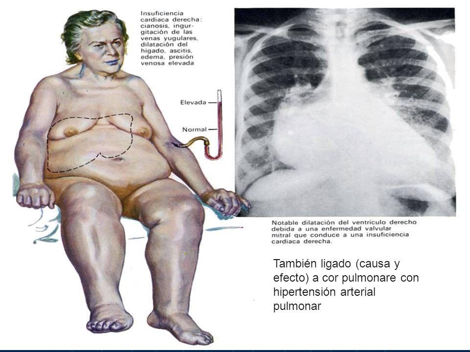 4 También ligado (causa y efecto) a cor pulmonare con hipertensión arterial pulmonar