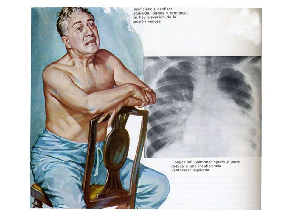 76 Insuficiencia cardiaca.Coronariopatías.