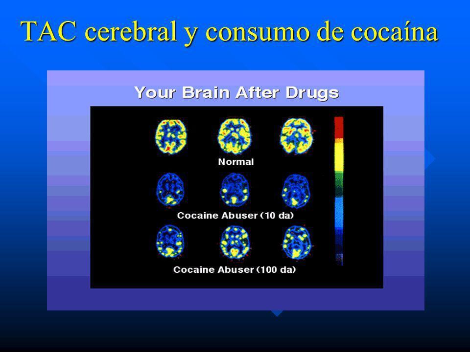 Complicaciones Médicas de la Adicción a la Cocaína. n Cardiovasculares :IAM, Arritmias, HTA. n Neurológicas : Cefaleas, Convulsiones Parciales o gener