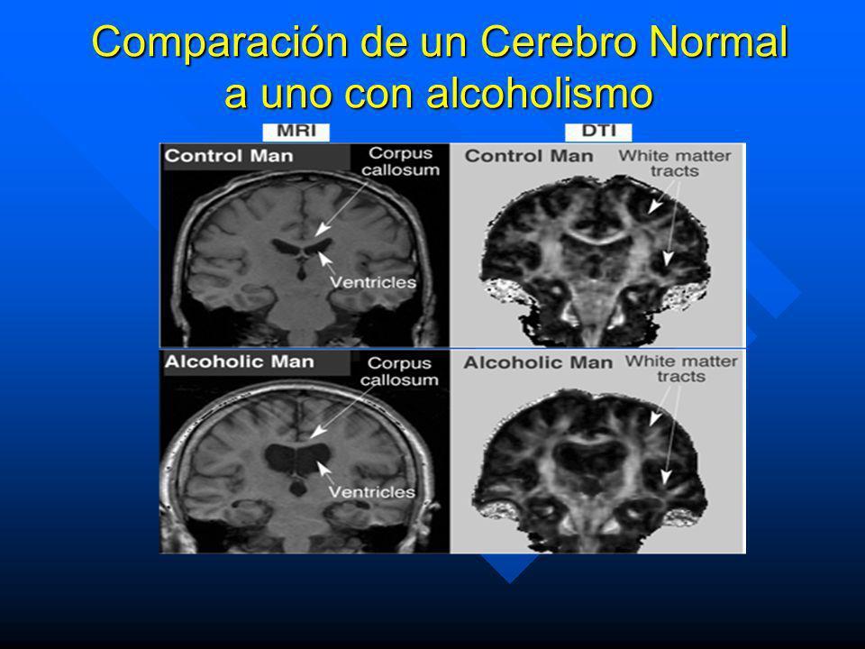 n En el sistema inmunológico: Se describe que un alcohólico tiene disminuido las defensas y es mas fácil que se enferme. n En el sistema cardiovascula