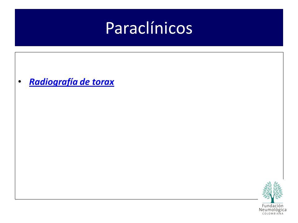 Paraclínicos Radiografía de torax