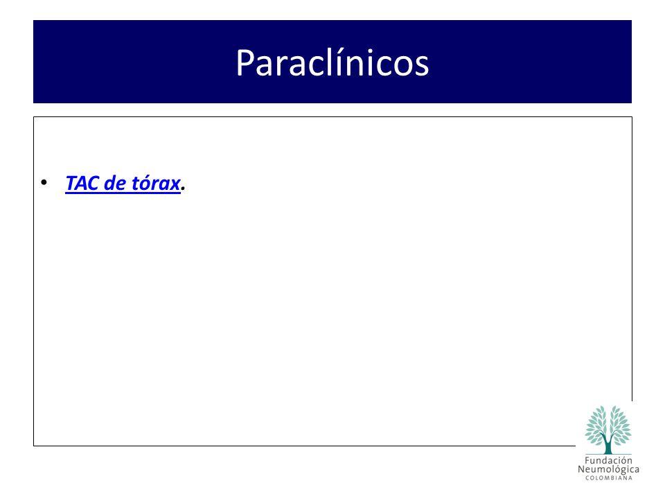 Paraclínicos TAC de tórax. TAC de tórax