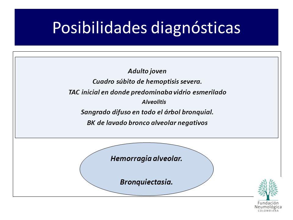 Adulto joven Cuadro súbito de hemoptisis severa. TAC inicial en donde predominaba vidrio esmerilado Alveolitis Sangrado difuso en todo el árbol bronqu