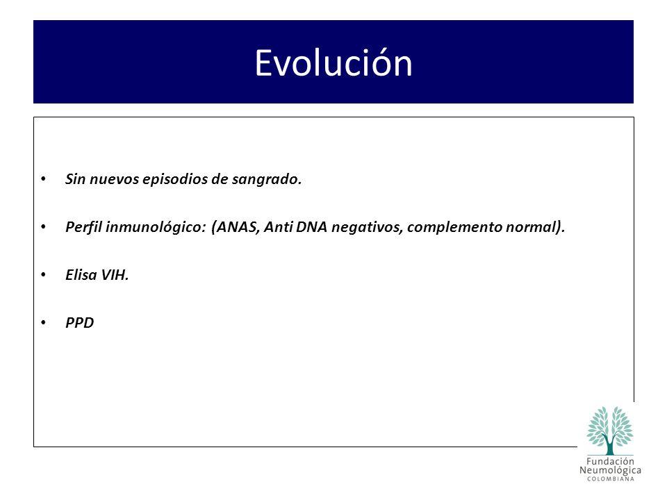 Evolución Sin nuevos episodios de sangrado. Perfil inmunológico: (ANAS, Anti DNA negativos, complemento normal). Elisa VIH. PPD