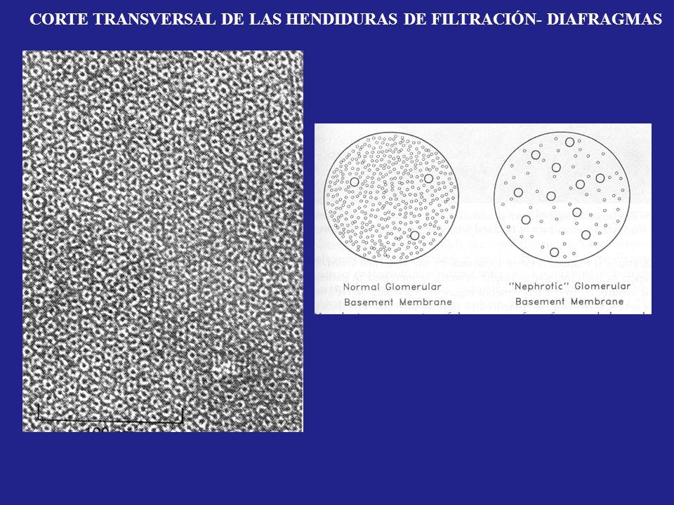 CORTE TRANSVERSAL DE LAS HENDIDURAS DE FILTRACIÓN- DIAFRAGMAS