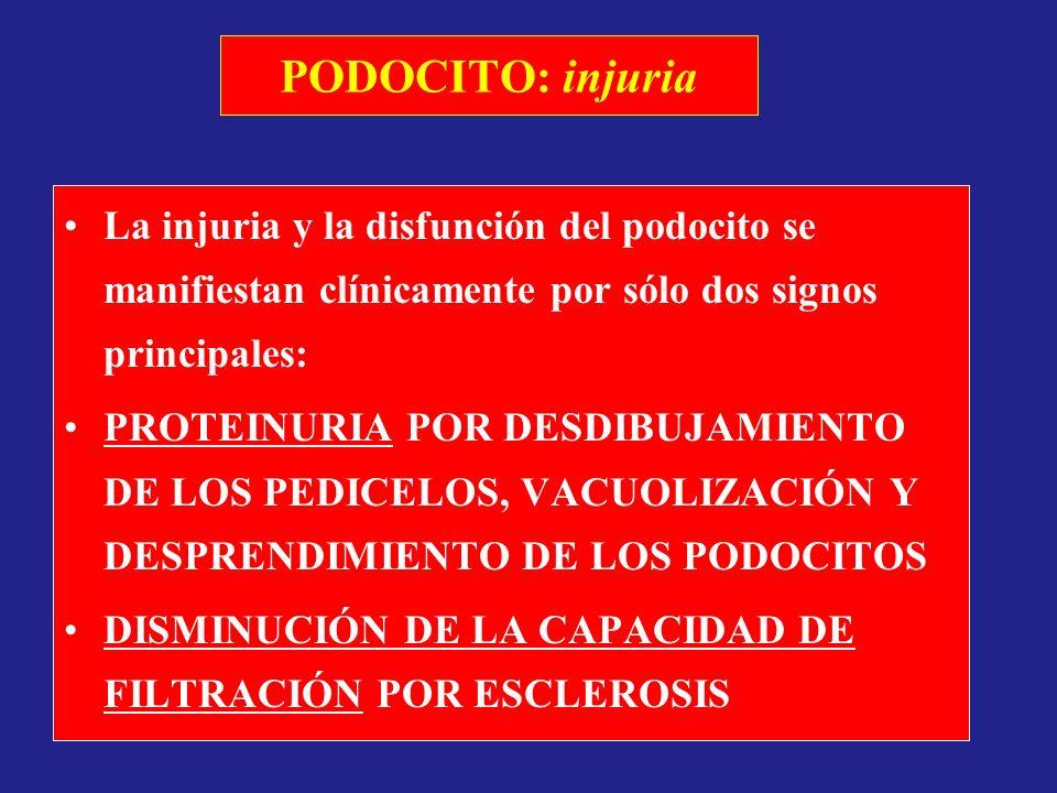 PODOCITO: injuria La injuria y la disfunción del podocito se manifiestan clínicamente por sólo dos signos principales: PROTEINURIA POR DESDIBUJAMIENTO