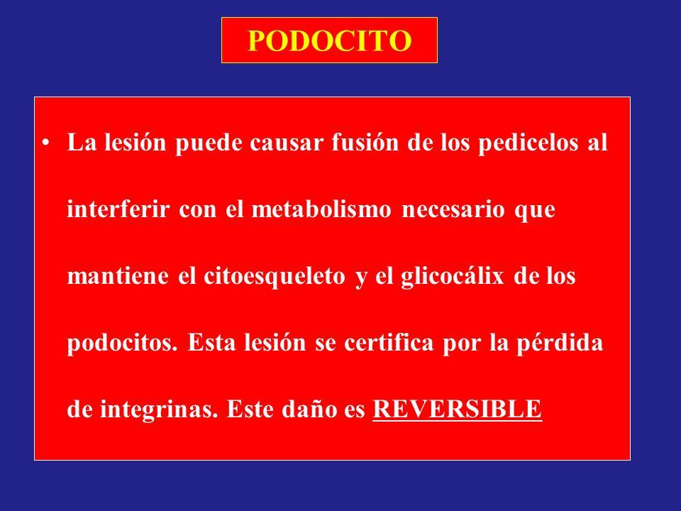 PODOCITO La lesión puede causar fusión de los pedicelos al interferir con el metabolismo necesario que mantiene el citoesqueleto y el glicocálix de lo