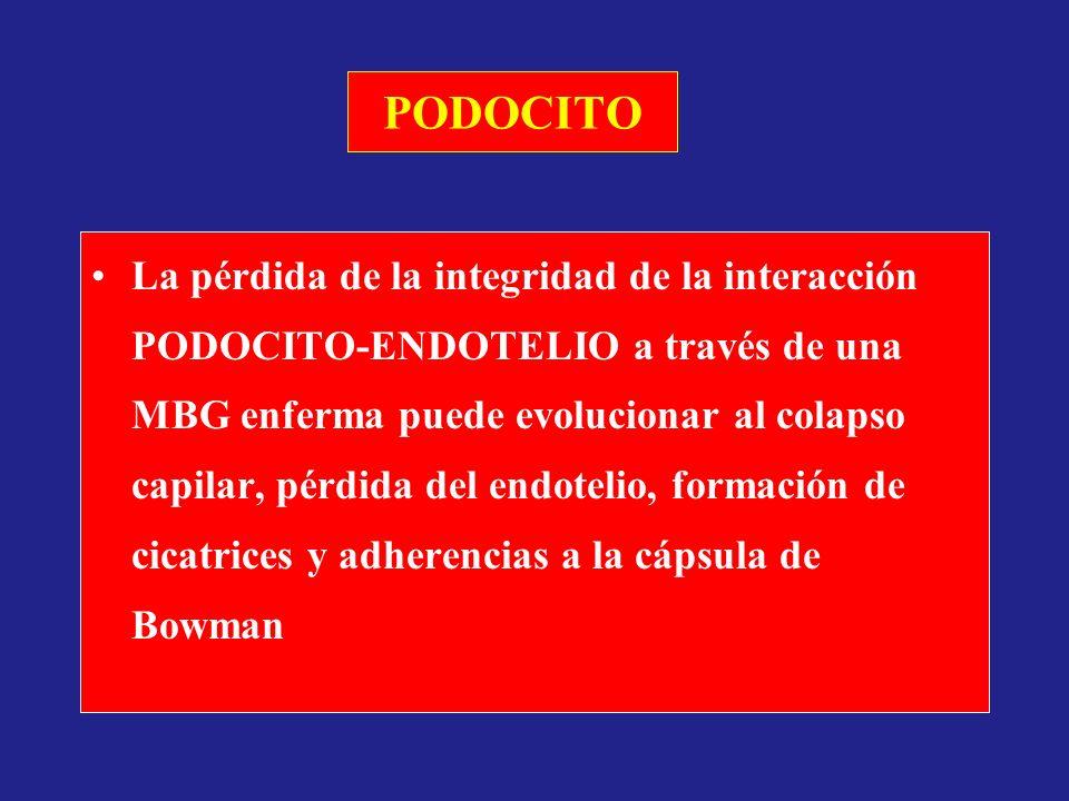 PODOCITO La pérdida de la integridad de la interacción PODOCITO-ENDOTELIO a través de una MBG enferma puede evolucionar al colapso capilar, pérdida de