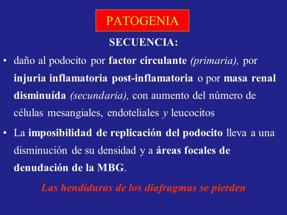 PATOGENIA SECUENCIA: daño al podocito por factor circulante (primaria), por injuria inflamatoria post-inflamatoria o por masa renal disminuída (secund