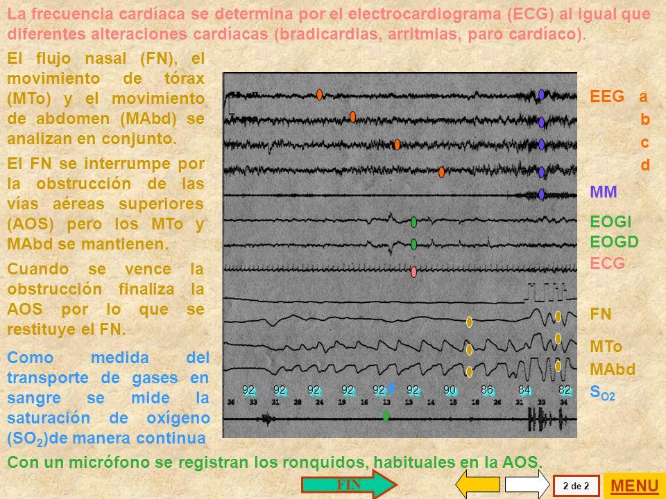 No se desarrollarán en detalle las características del estudio de sueño. Se presenta un polisomnograma realizado en un paciente con AOS. 92 92 92 92 9