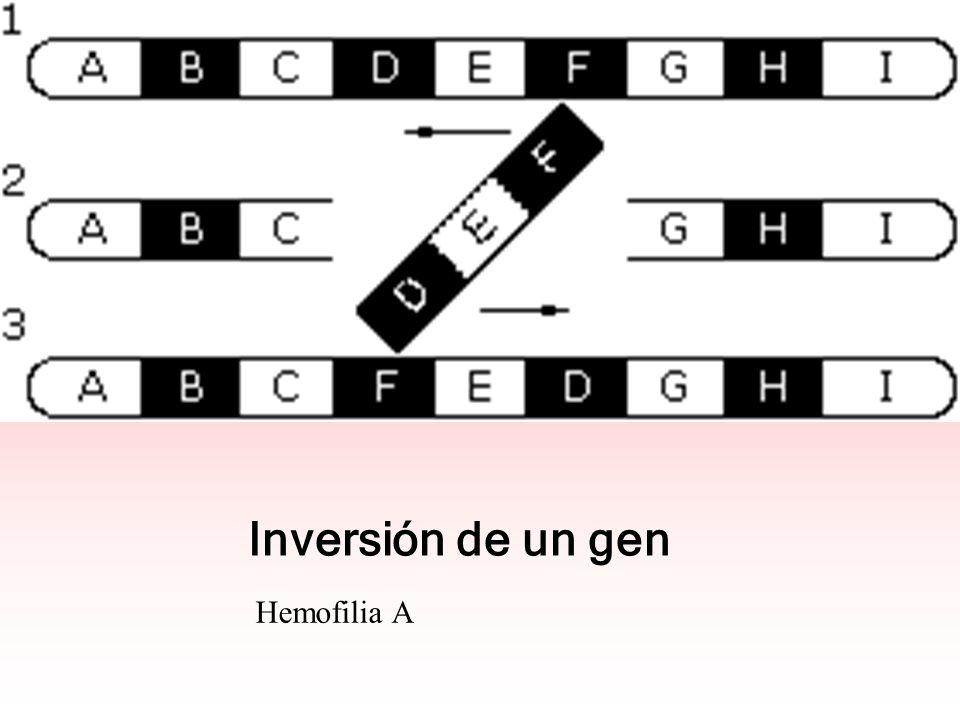 Inversión de un gen Hemofilia A