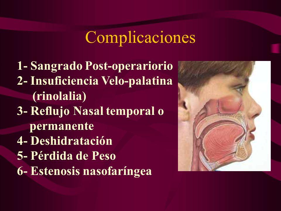 Evaluación Post-operatoria Efecto de Qx: reducir tejido vibratorio del paladar y úvula Dejar pasar 4 semanas para valorar resultado