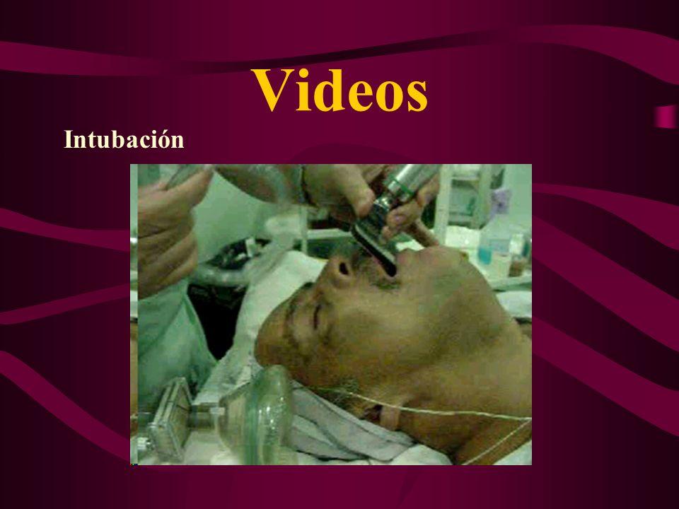 Procedimientos Asociados 1- Septumplastía 2- Reducción cornetes (Térmica, Laser, Shaver) 3- Polipectomía (FESS) 4- Amigdalectomía 5- Adenoidectomía 6-