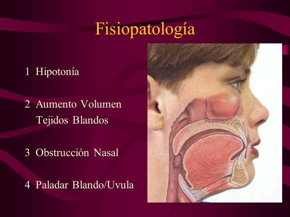 Génesis del Ronquido Obstrucción del paso libre de aire a través de las fosas nasales y la faringe. En la parte colapsable: entre pared posterior de f
