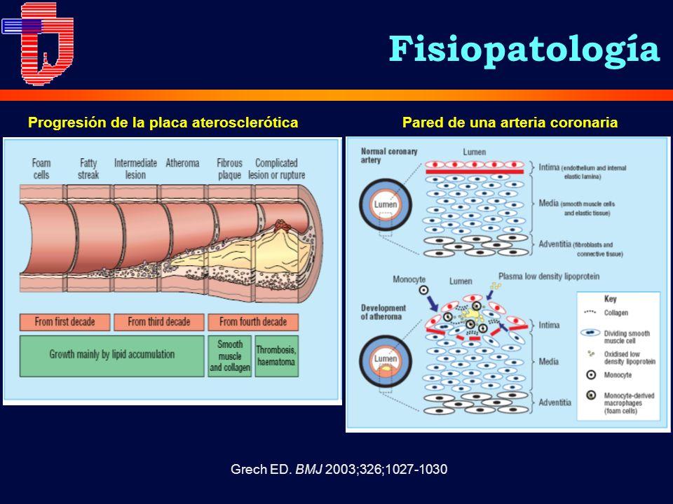 Grech ED. BMJ 2003;326;1027-1030 Progresión de la placa ateroscleróticaPared de una arteria coronaria