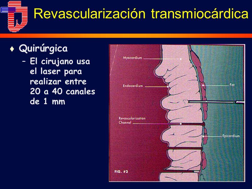 Revascularización transmiocárdica t Quirúrgica –El cirujano usa el laser para realizar entre 20 a 40 canales de 1 mm