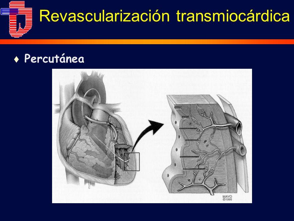 t Percutánea Revascularización transmiocárdica