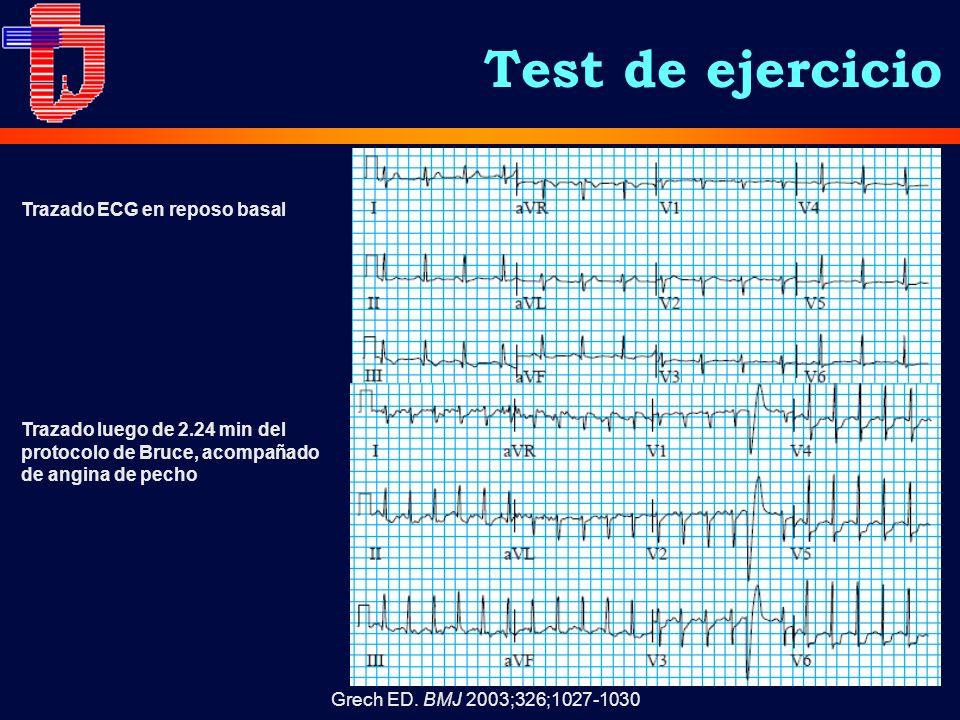 Test de ejercicio Grech ED. BMJ 2003;326;1027-1030 Trazado luego de 2.24 min del protocolo de Bruce, acompañado de angina de pecho Trazado ECG en repo