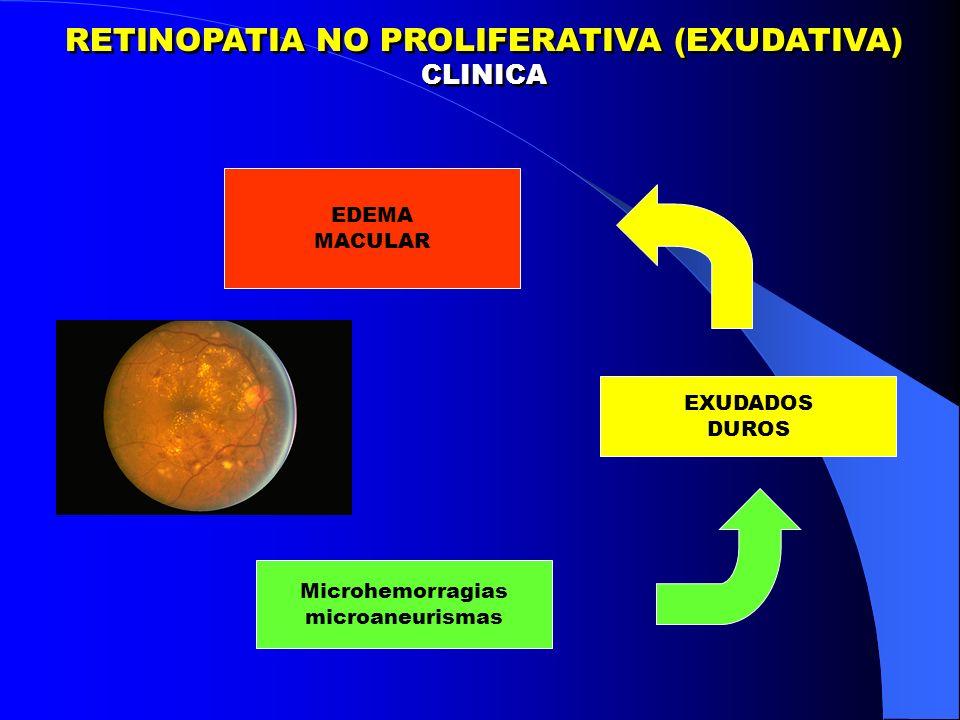 RETINOPATIA NO PROLIFERATIVA (EXUDATIVA) CLINICA RETINOPATIA NO PROLIFERATIVA (EXUDATIVA) CLINICA Microhemorragias microaneurismas EXUDADOS DUROS EDEMA MACULAR