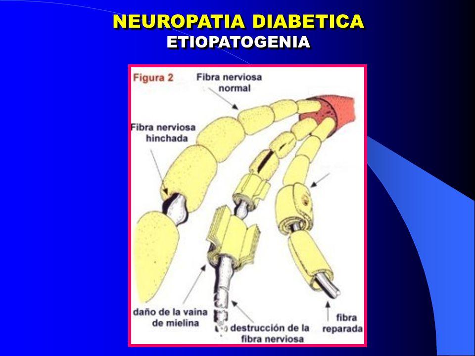 NEUROPATIA DIABETICA ETIOPATOGENIA ETIOPATOGENIA