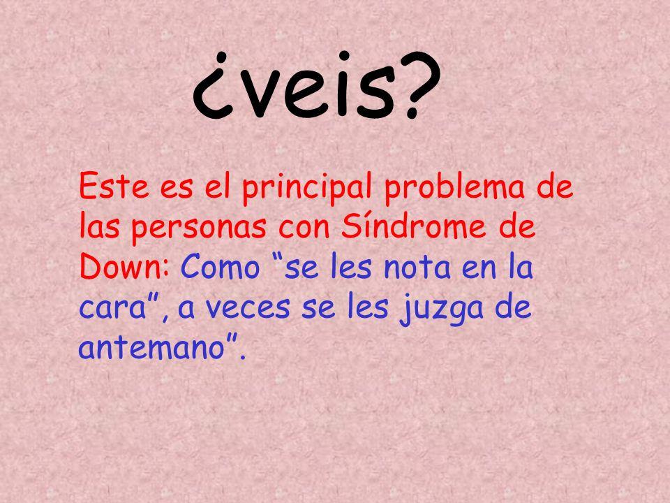 Este es el principal problema de las personas con Síndrome de Down: Como se les nota en la cara, a veces se les juzga de antemano. ¿veis?