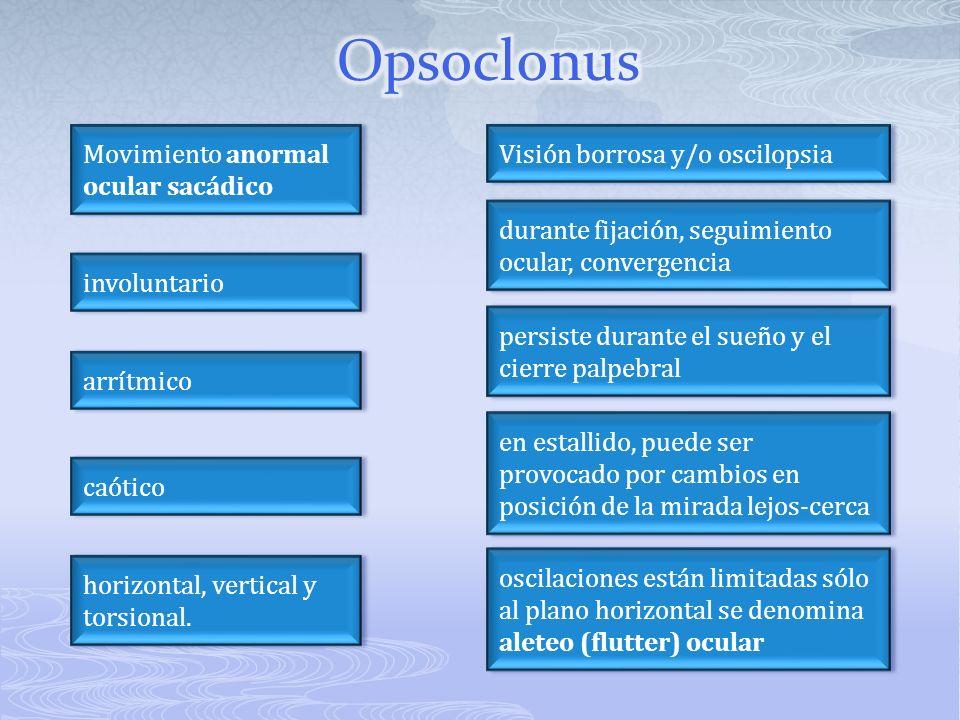 Movimiento anormal ocular sacádico Movimiento anormal ocular sacádico involuntario caótico arrítmico horizontal, vertical y torsional. Visión borrosa