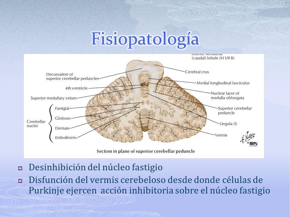 Desinhibición del núcleo fastigio Disfunción del vermis cerebeloso desde donde células de Purkinje ejercen acción inhibitoria sobre el núcleo fastigio