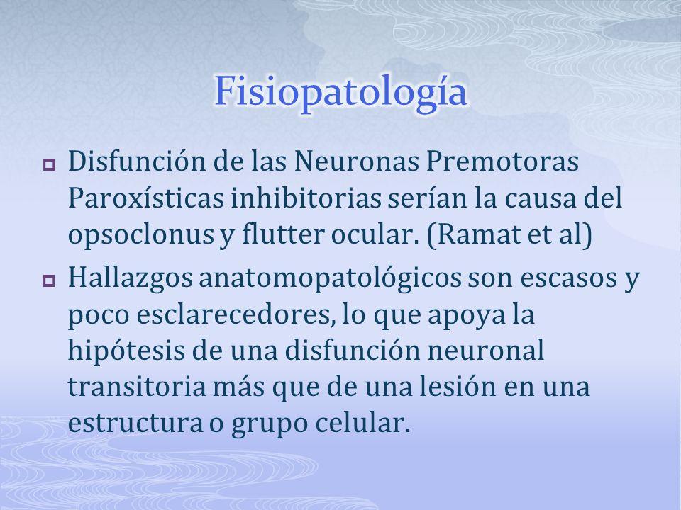 Disfunción de las Neuronas Premotoras Paroxísticas inhibitorias serían la causa del opsoclonus y flutter ocular. (Ramat et al) Hallazgos anatomopatoló