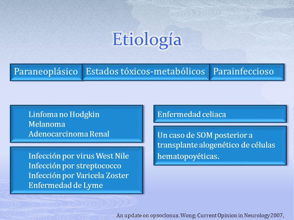 An update on opsoclonus. Wong; Current Opinion in Neurology2007, Paraneoplásico Un caso de SOM posterior a transplante alogenético de células hematopo