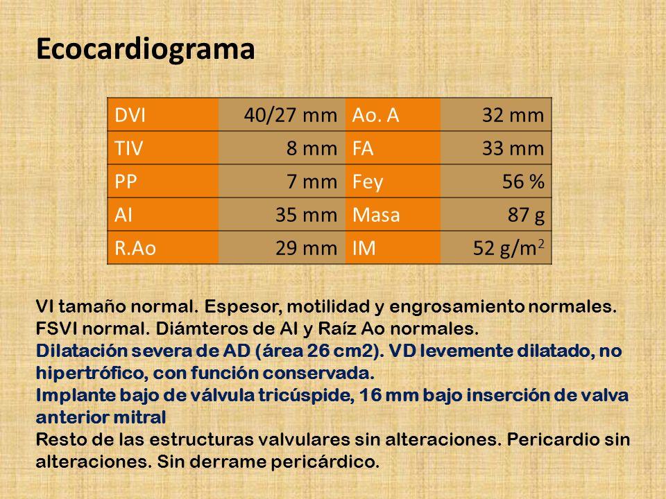 Ecocardiograma DVI 40/27 mm Ao. A 32 mm TIV 8 mm FA 33 mm PP 7 mm Fey 56 % AI 35 mm Masa 87 g R.Ao 29 mm IM 52 g/m 2 VI tamaño normal. Espesor, motili