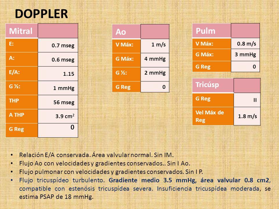 DOPPLER Mitral E: 0.7 mseg A: 0.6 mseg E/A: 1.15 G ½: 1 mmHg THP 56 mseg A THP 3.9 cm 2 G Reg 0 Ao V Máx:1 m/s G Máx:4 mmHg G ½:2 mmHg G Reg0 Pulm V Máx:0.8 m/s G Máx:3 mmHg G Reg0 Tricúsp G Reg II Vel Máx de Reg 1.8 m/s Relación E/A conservada.